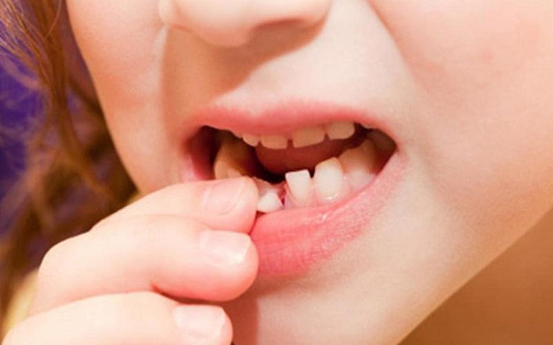 Giấc mơ rụng răng có thể do bạn đang có nhiều áp lực trong cuộc sống