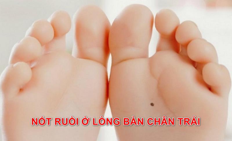 Nốt ruồi dưới lòng bàn chân trái