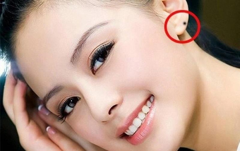 Nốt ruồi ở tai dự báo vận mệnh tính cách mỗi người
